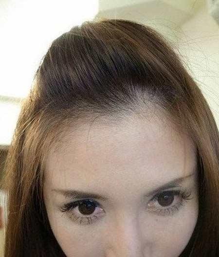 วิธีทำผมเปิดหน้าผากสวย ๆ ด้วยวิธีง่าย ๆ